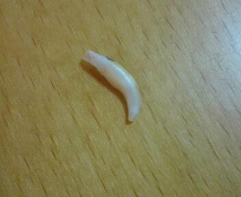 乳歯抜ける